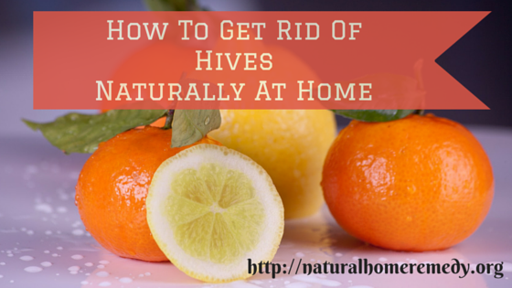 How To Get Rid Of Stress Hives Naturally