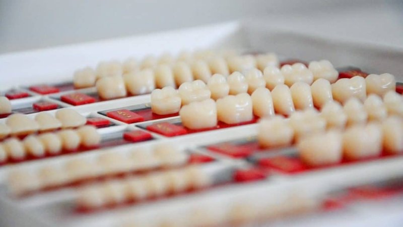 What Advanced Dental Treatments Are Offered At ZAGA Centers? 8fa2d36d7423aee948cee8d53dcfee1e